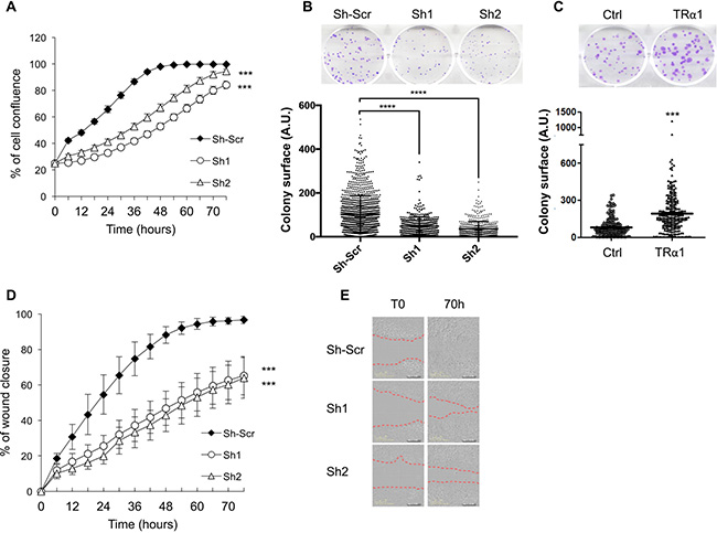 TRα1-dependent cell growth and migration in colorectal cancer cells.