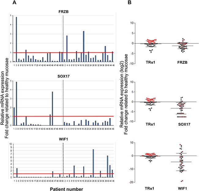Correlation between TRα1 and Wnt antagonists in human colorectal cancer samples.