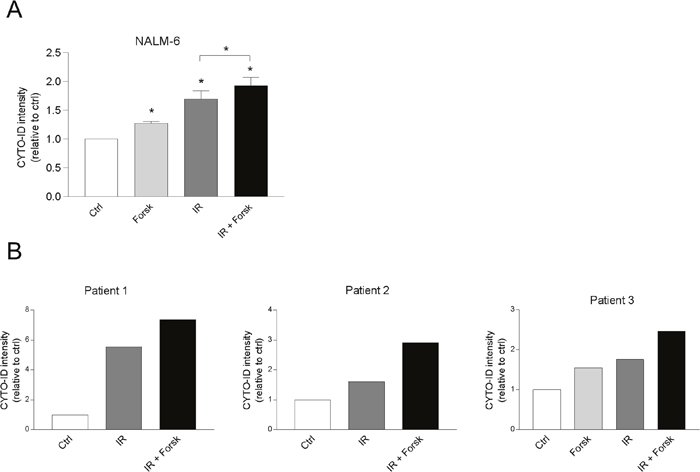 cAMP signaling enhances CYTO-ID staining in NALM-6 and in primary BCP-ALL cells.
