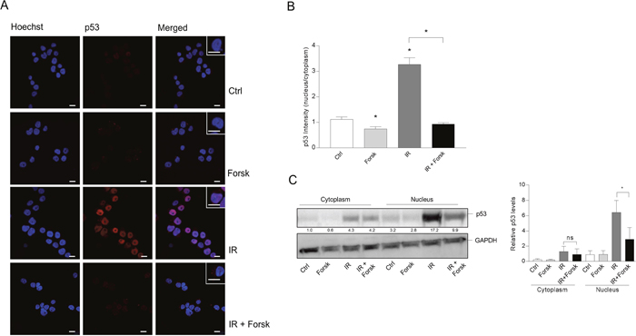 The effects of IR and cAMP signaling on the subcellular localization of p53.