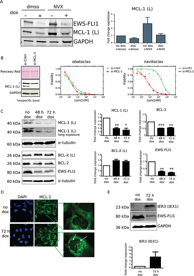 MCL-1 expression levels are EWS-FLI1 dependent and contribute to the drug-induced phenotype.