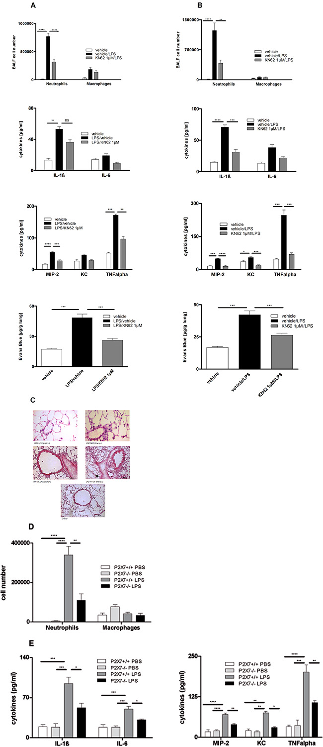 Effect of prophylactic or therapeutic administration of 1 μM KN62 and P2X7R-deficiency on LPS-induced ALI.
