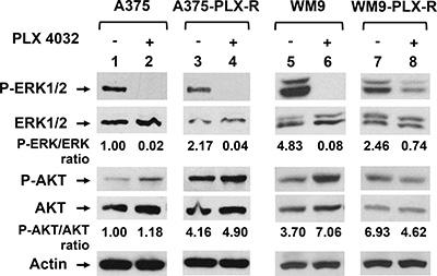 PLX4032-resistant melanoma cells have altered Ras signal pathways.