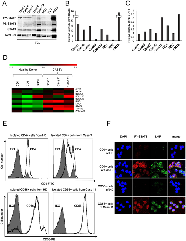 STAT3 is constitutively activated in patient-derived EBV-infected T or NK cells.