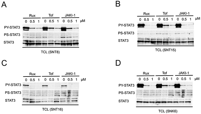 JAK inhibitors suppress the constitutive phosphorylation of STAT3 in EBV-positive T- or NK-cell lines.