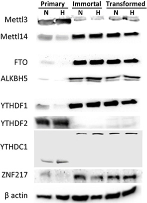 Protein expression of m6A methyltransferases, demethylases and RNA binding proteins changes during HMEC immortalization/transformation.