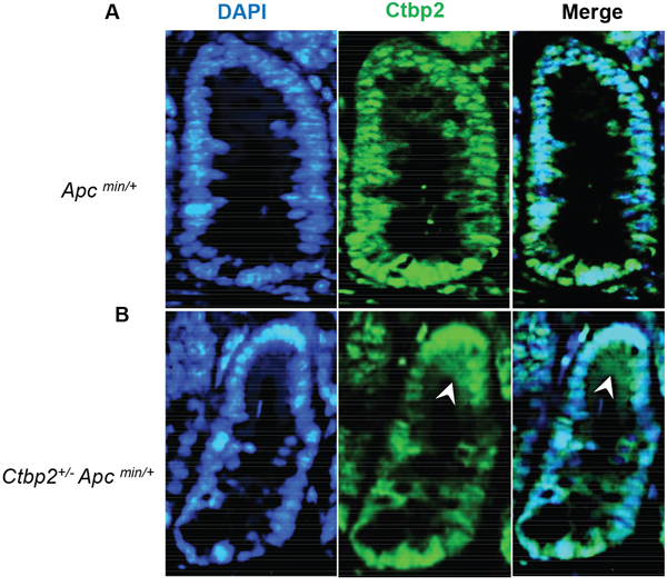 Ctbp2 localization in Ctbp2 wildtype vs. Ctbp2 haploinsufficient Apc min small intestinal polyps.