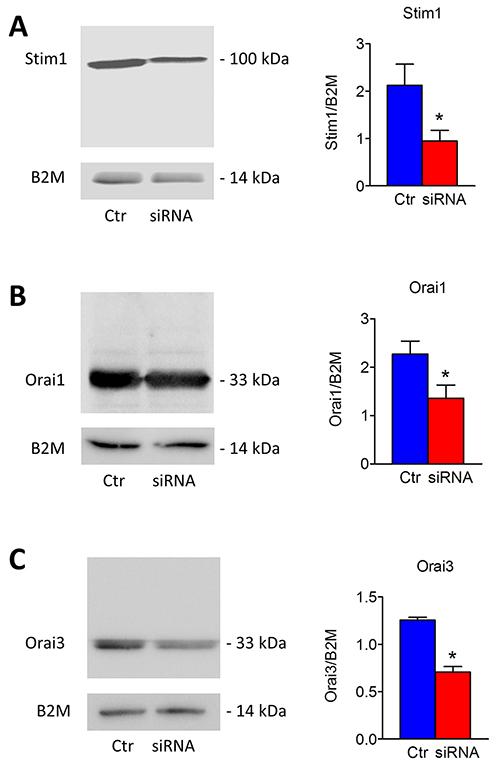 Silencing of Stim1, Orai1 and Orai3 in mCRC cells.