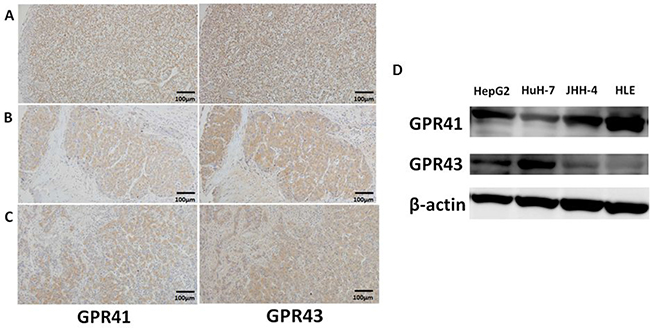 Protein expression of GPR41 and GPR43 in human HCC.