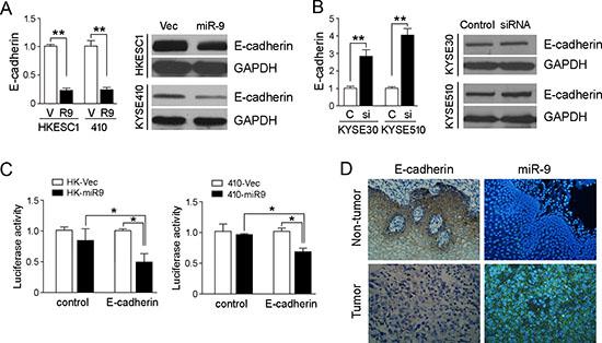 miR-9 down-regulates E-cadherin in ESCC cells.