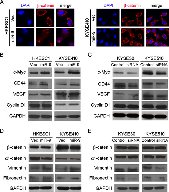 miR-9 activates β-catenin pathway and induces EMT.