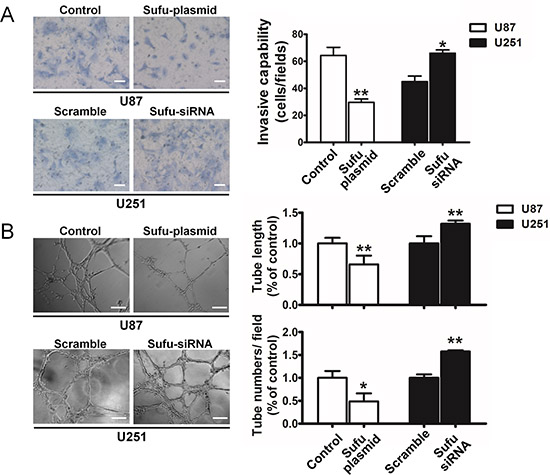 Sufu suppressed invasion and vasculogenic mimicry of glioma cells.