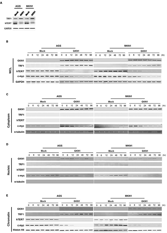 GKN1 negatively regulates expression of telomere-related proteins.