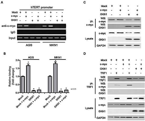 GKN1 directly binds to c-myc and inhibits c-myc-induced hTERT expression.
