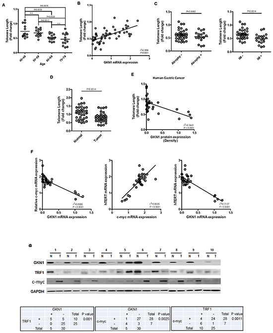 Correlation between GKN1 and telomere length in gastric mucosa and gastric cancer.
