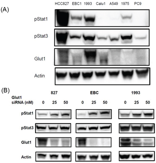 Effects of Glut1 knockdown on the expression of Stat signal pathway proteins in human lung cell lines.