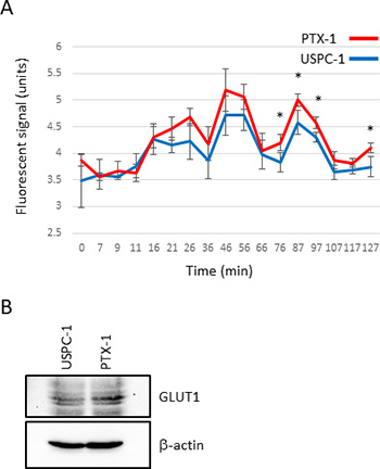 Glucose consumption and glucose transporter expression in uterine serous carcinoma cells.