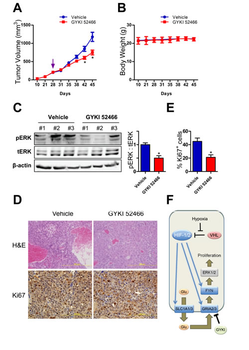 Glutamate receptor signaling in Hep3B tumor xenografts.