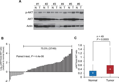 Constitutive activation of PI3K/AKT signaling pathway in esophageal cancer.