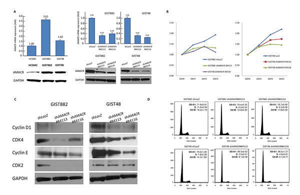 Figure-4: AMACR overexpression confers tumor aggressiveness by promoting in vitro growth of GIST cell lines.