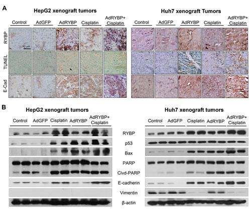 Fig.7: RYBP induces apoptosis