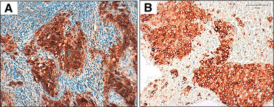 Validated PD-L1 immunohistochemical assay using clone SP263 (Ventana) on an automated staining platform (Benchmark ULTRA; Ventana).