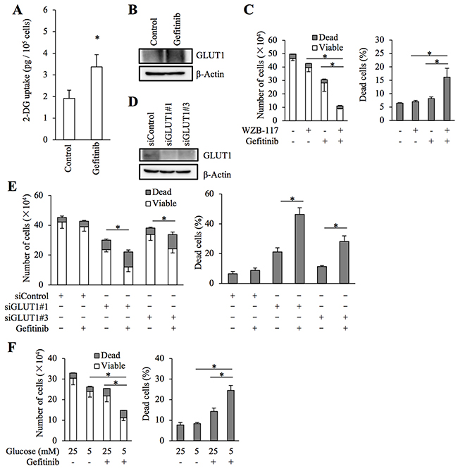 Role of facilitative glucose transport in gefitinib resistance of stem-like A549 cells.