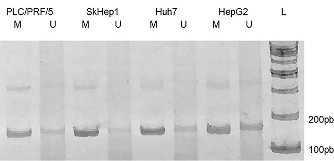 MS-PCR of the genomic region corresponding to the P1 promoter of PLAGL1 gene.