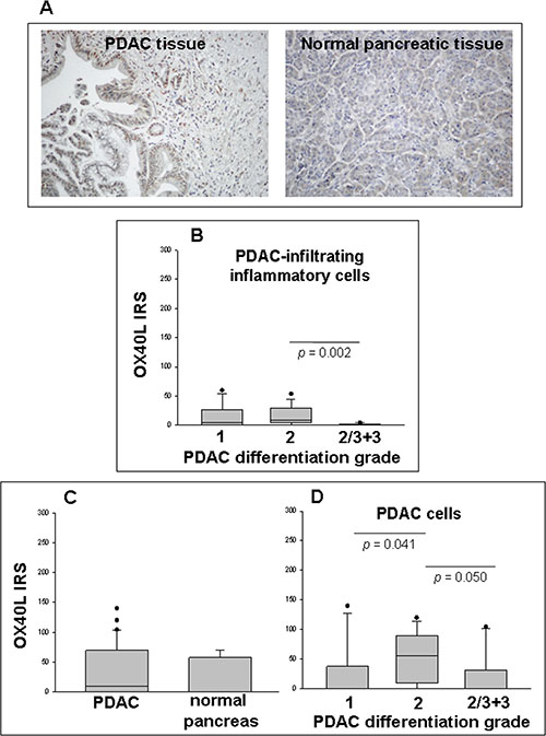 Detection of OX40L in PDAC and normal pancreatic tissues in situ as determined by IHC.