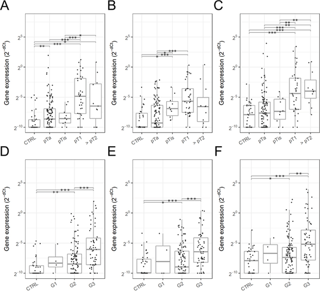 Urinary EV mRNA expression in various stages and grades of bladder cancer.