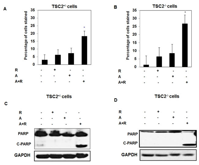 Synergistic effect of drug combinations significantly increased cell apoptosis, decreased cell proliferation, blocked Akt and decreased HIF-2α expression in primary TSC2