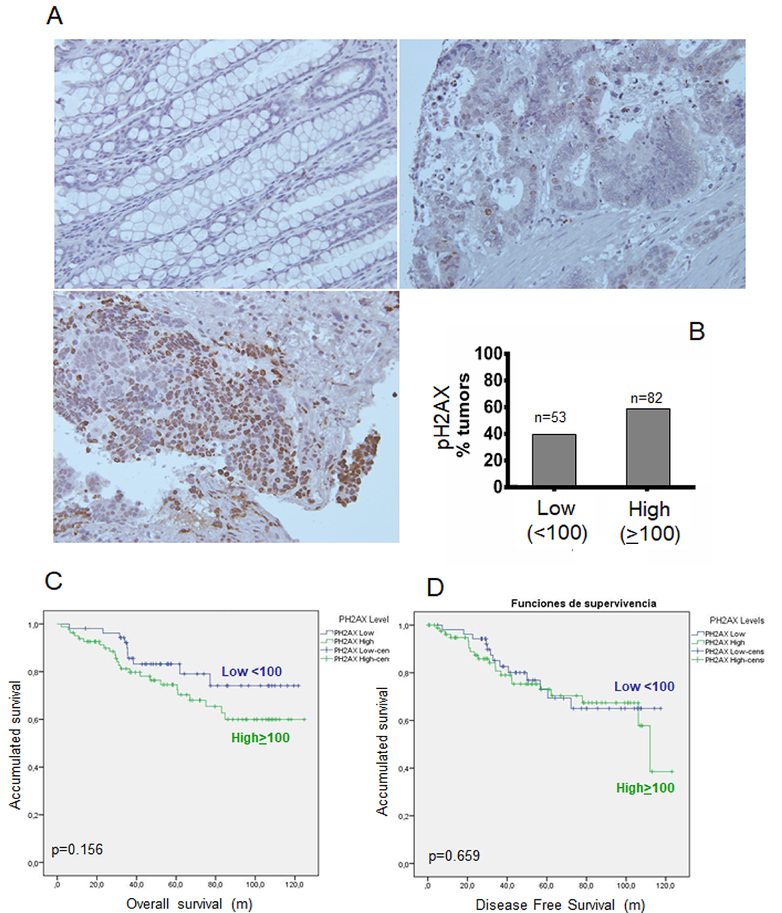 Phosphorylation of γH2AX (p-H2AX) in rectal tumors after concurrent chemoradiotherapy.