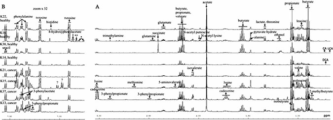Typical 600 MHz 1H NMR spectra of aqueous faecal extracts from 4 CRC patients and age and sex matched controls.