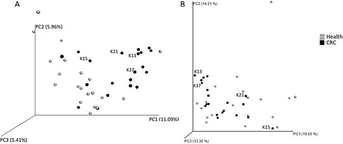 Beta-diversity analysis of faecal microbiota of healthy controls (grey) and colorectal cancer patients (black).