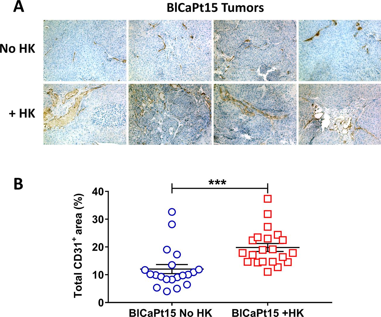 LN stromal HK cells support UCC tumor angiogenesis in the IB model.