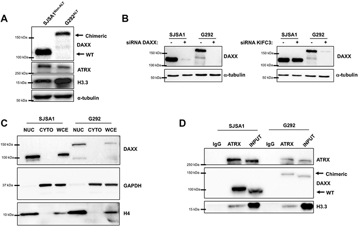 The DAXX-KIFC3 fusion leads to expression of a chimeric protein.