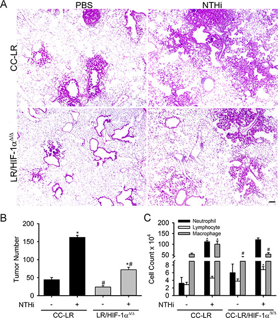Lack of HIF-1α in the airway epithelium suppresses K-ras induced lung tumorigenesis and its promotion by inflammation.