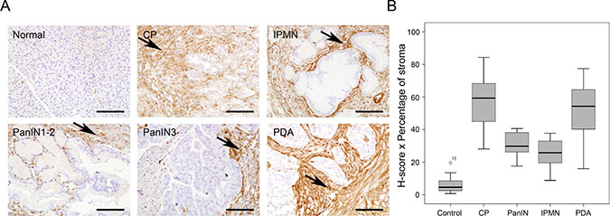 Gal-1 immunohistological expression in normal and pathological human pancreatic tissue samples.