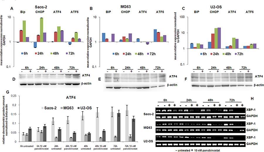 Endoplasmic reticulum stress markers.