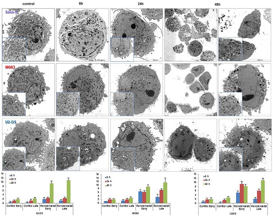 Electron micrographs.