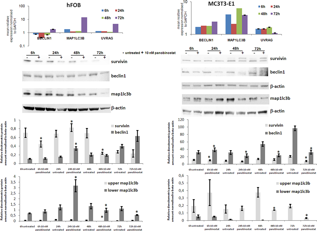 Effects of panobinostat in human and murine osteoblasts.