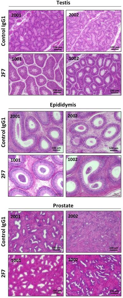 Histopathological examination after injection of anti-podoplanin neutralizing antibodies in Macaca fascicularis.