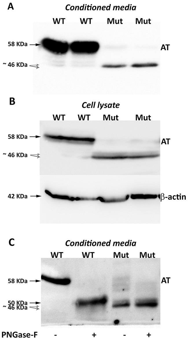 Antithrombins expressed by HEK-EBNA cells 24 h after transfection with pCEP4-S169A (WT) and pCEP4-S169A-M1I (Mut) plasmids.