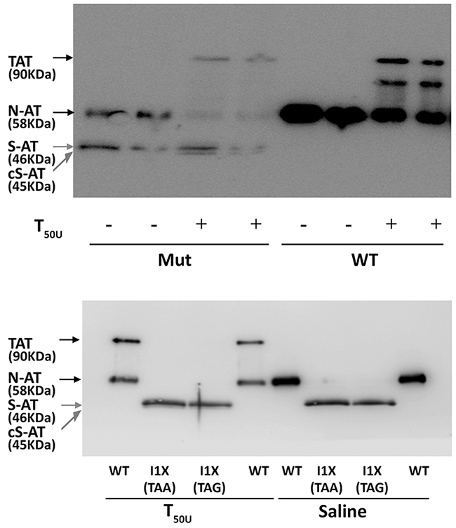 Anti-thrombin activity of antithrombin from conditioned media of HEK-EBNA cells transfected with wild-type (WT), the pCEP4-S169A-M1I (Mut), pCEP4-S169A-I1X (TAA) and pCEP4-S169A-I1X (TAG) plasmids.