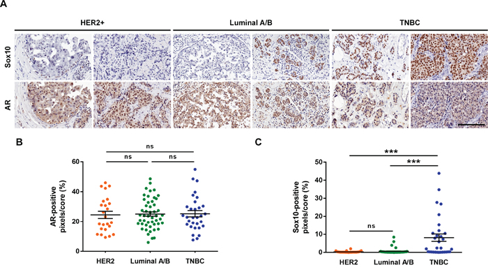 SOX10 histochemistry can be used as a predictor of TNBC.