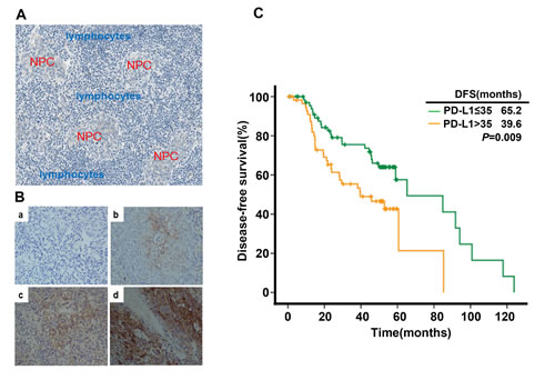 PD-L1 expression in tumor tissue samples and its correlation with recurrence free survival in nasopharyngeal carcinoma patients.