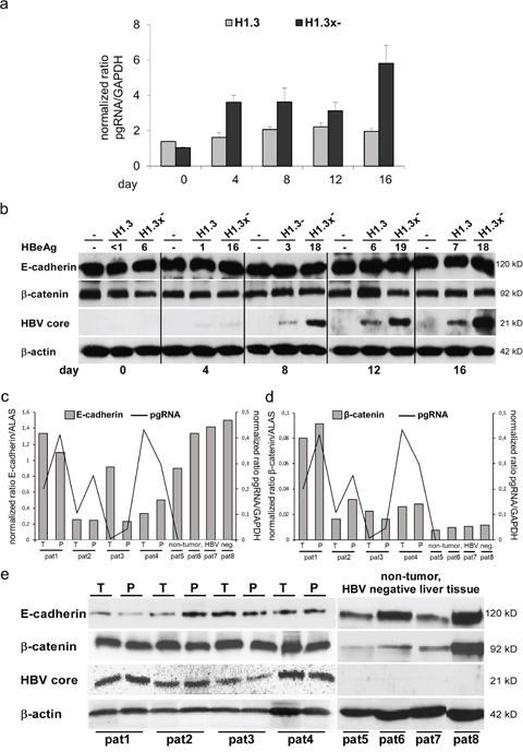 Total protein levels of E-cadherin/β-catenin in HBV-replicating hepatoma cells and mRNA expression/total protein levels of E-cadherin/β-catenin in human liver tissue (HBV-infected and HBV-negative).