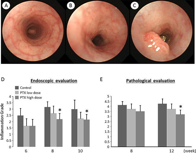 Endoscopic images and effects of pentoxifylline on AOM/DSS-induced inflammation and tumors in the colon of KAD rats.