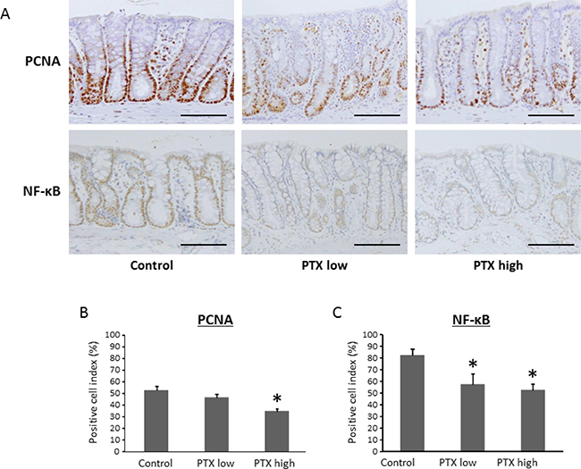 Effects of pentoxifylline on NF-κB activity and cell proliferative activity in colonic mucosa of experimental rats.