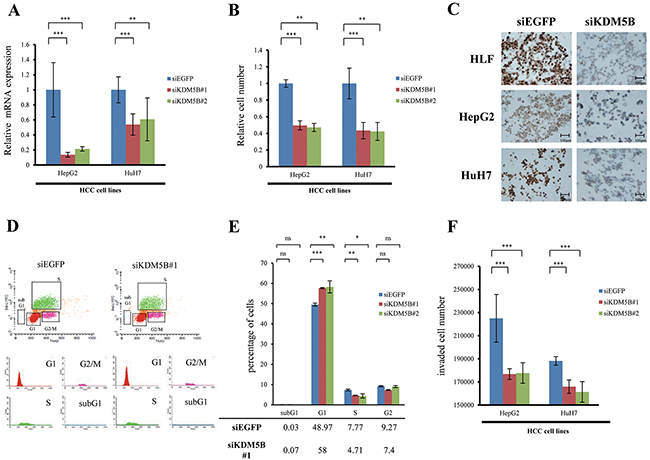 Involvement of KDM5B in the tumor growth and invasion of HCC cell lines.